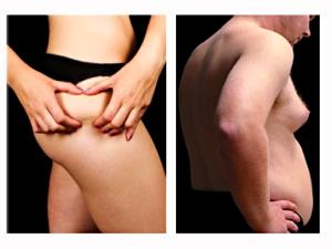Nízka hladina testosterónu a prevládajúci estrogén zapríčiňuje priberanie