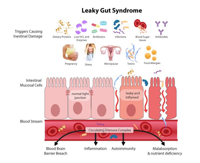 Detailný pohľad na problém podráždenného čreva